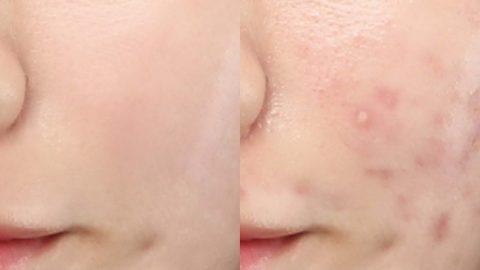 Photobi 採用獨創韓式證件相修圖技術,無論是暗瘡、瘡印、黑頭粉刺、疤痕、黑眼圈、皮膚發炎紅腫或毛孔粗獷等問題都可以淡化。